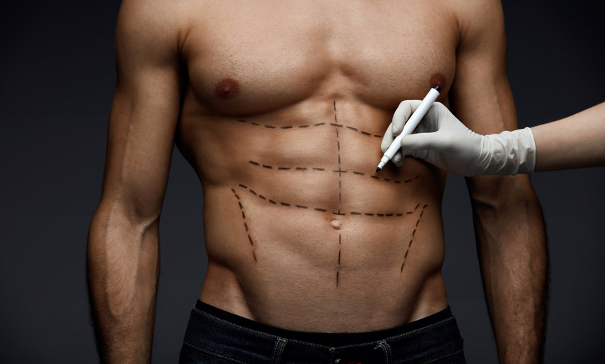 abs with marker marks